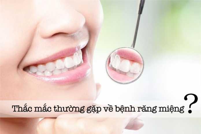 Thắc mắc thường gặp về bệnh răng miệng