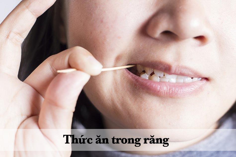 Thức ăn bị mắc kẹt lại trong răng