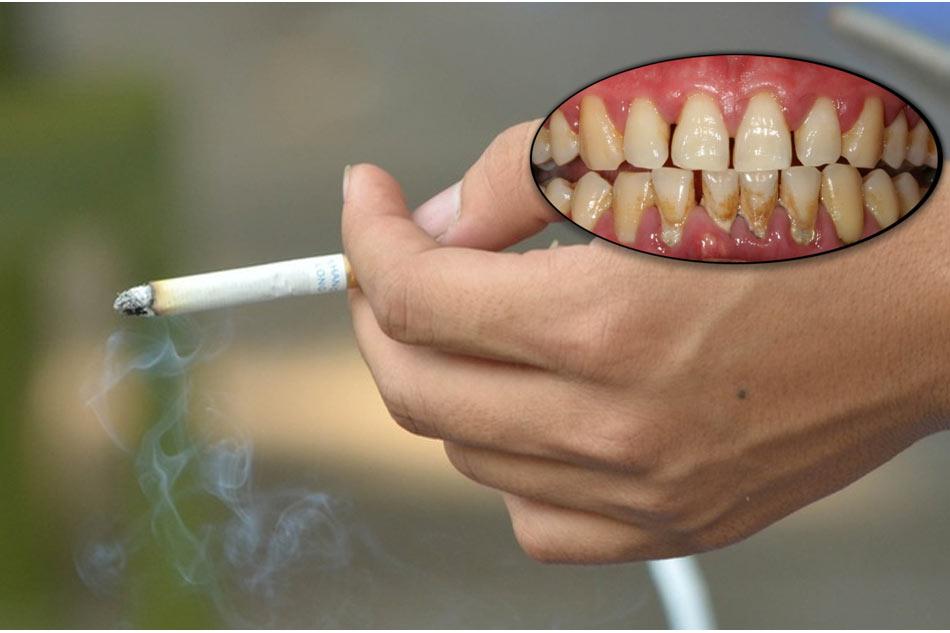 Thuốc lá gây nên các bệnh về răng nguy hiểmThuốc lá gây nên các bệnh về răng nguy hiểm
