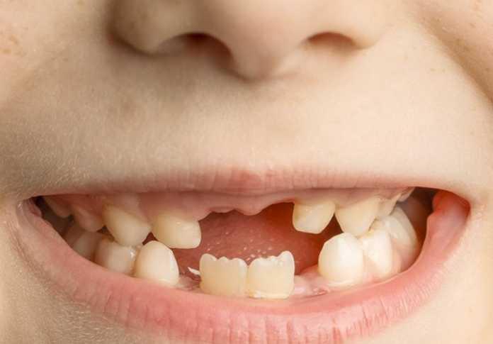 Sâu răng rất thường hay gặp ở trẻ nhỏ