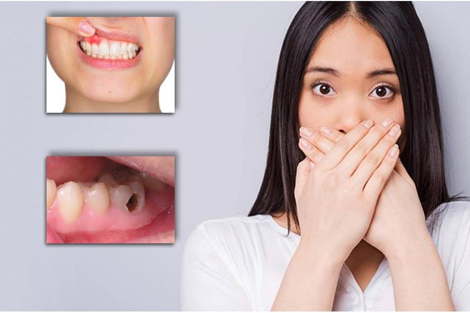 Viêm lợi – viêm nha chu, sâu răng,.. là một trong những nguyên nhân chính gây hôi miệng
